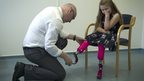 Grace having legs fitted