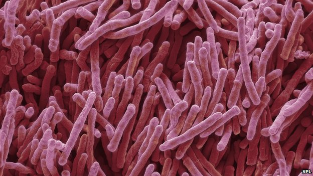 'Game-changing' antibiotic find