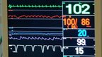 Intensive care monitor