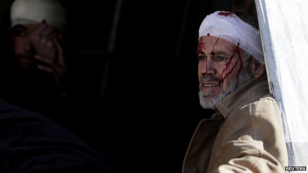 An injured person at a field hospital after air strikes by forces loyal to Syria's President Bashar al-Assad attacked the Douma neighbourhood of Damascus (05 February 2015)