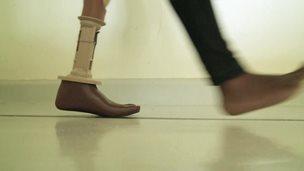 Prosthetic limb