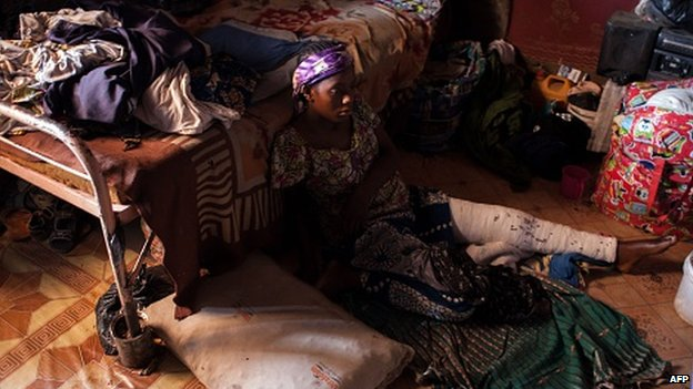 A Nigerian woman,  with an injured leg sustained during her exodus from Maiduguri to the city of Kano,  fleeing Boko Haram Islamists,  sits in a room she shares with 78 others displaced in a run down house,  in a poor district of Kano,  on February 9,  2015