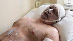 Injured miner from the Zasyadko mine in Ukraine