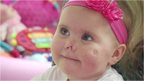 Baby Harmonie-Rose who survived meningitis