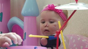 Harmonie-Rose, who lost part of her limbs and face from meningitis, playing with a drum kit