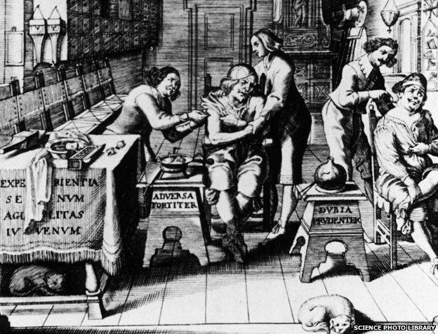 17th century barber surgeons