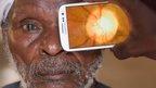 http://www.isaude.net/pt-BR/plantao-bbc/news/health-32914227