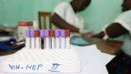 http://www.isaude.net/pt-BR/plantao-bbc/news/health-32917020