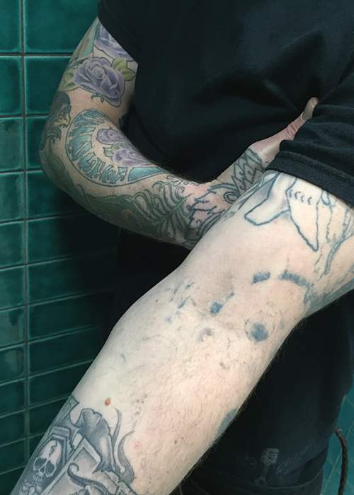 Undrawing my tattoos bbc news for Forearm tattoo cost