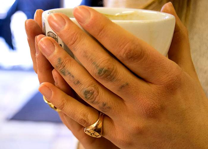 Remains of tattoos on Tass's fingers