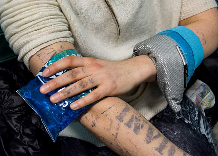 Ice packs can reduce post-treatment pain