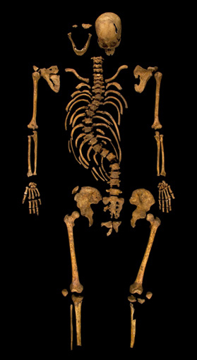 The recently discovered skeleton of Richard III