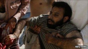 An injured man in Srinagar on 2 August 2010