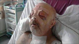 Michael Brown in hospital