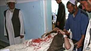 An Afghan man is brought into hospital in Ghazni, Afghanistan, after his car was hit by a roadside bomb blast on August 10, 2010.