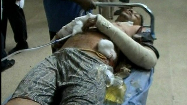 Injured man in a Baghdad hospital