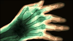 X-ray of a rheumatic hand