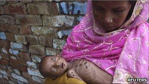 Malnourished child