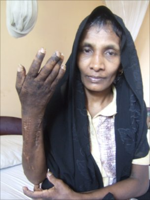 A Sri Lankan domestic worker shows her arm which she says was harmed by her employers (photo credit:Dushiyanthini Kanagasabapathipillai/Human Rights Watch)