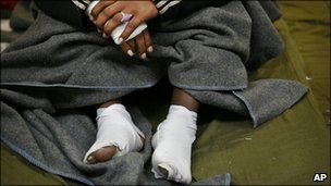 Injured Eritrean asylum-seeker