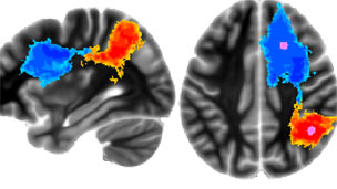 Brain scans of fighter pilots