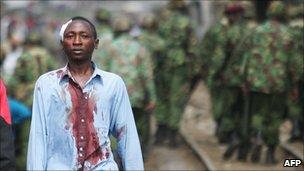 An injured Kikuyu man in Nairobi, Kenya (Jan 2008)