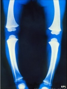 X-ray of a child's leg with rickets