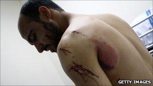 Injured demonstrator, Manama (17 Feb 2011)