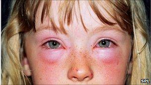 Child having allergic reaction