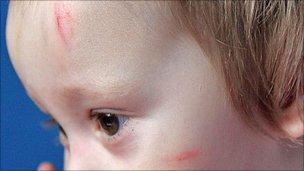 Casper's bruises