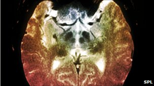 Parkinson's brain
