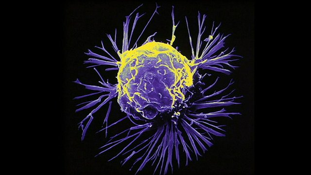 A magnified cancer cell