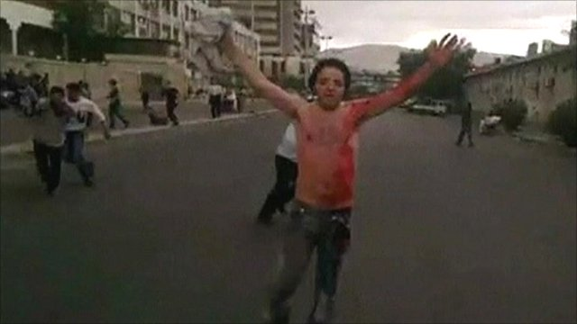 Man covered in blood stands in the street