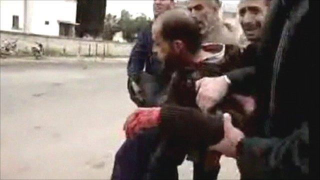 Am vid of injured Syrian man