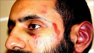 Injuries on Babar Ahmad