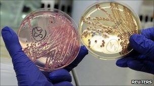 Saiba como se prevenir contra a bactéria E.Coli