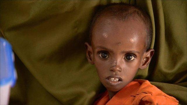 Child in Kenyan refugee camp