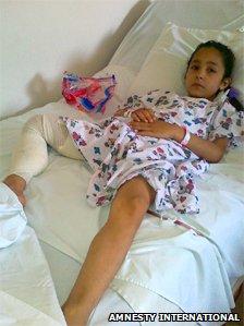 Munira, 7, in a hospital bed in Lebanon