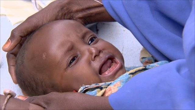 Baby in Kenyan refugee camp
