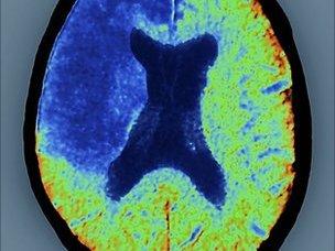 Stroke damaged brain