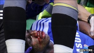 Didier Drogba receives treatment on the football colliding with Norwich City's John Ruddy on 27 August