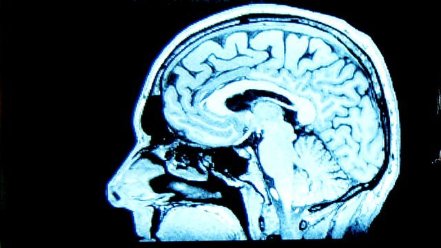 Brain scan image