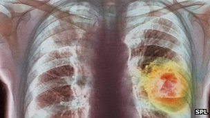 Lung cancer vaccine shows promise
