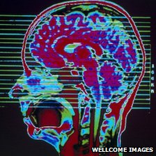 MRI scan of a head showing the brain