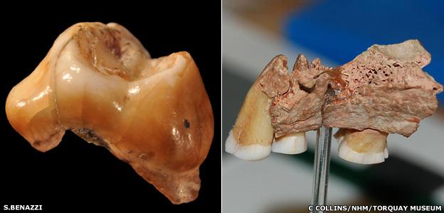 Ancient teeth