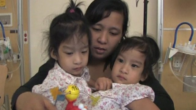 Two-year-old conjoined twins Angelina and Angelica Sabuco, before separation operation