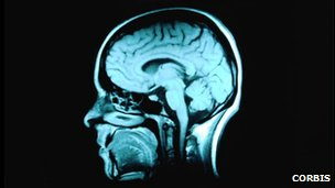 Magnetic Resonance Imaging scan of the head brain