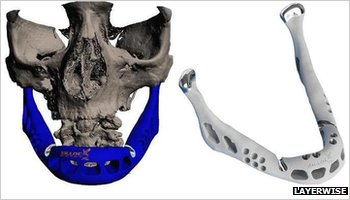 3D-printed jaw