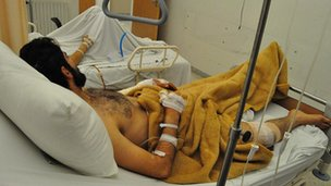 Victim of Syria shooting recovering in Lebanon hospital, 19 Feb 12