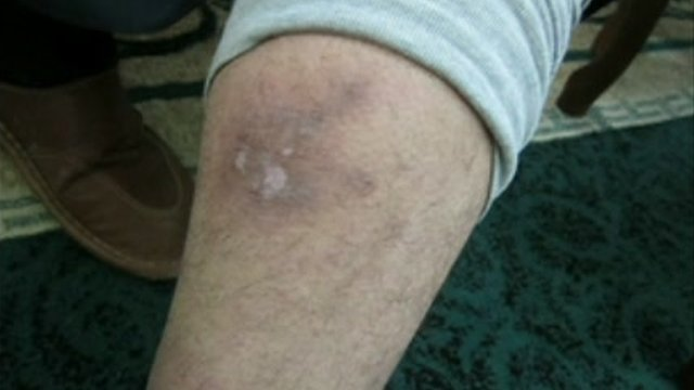 Evidence of torture on an anonymous person's limb.